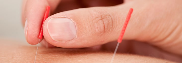 Acupuncture in Romeoville IL